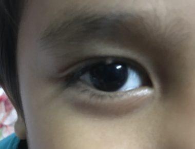 Mata bengkak atau ketumbit?